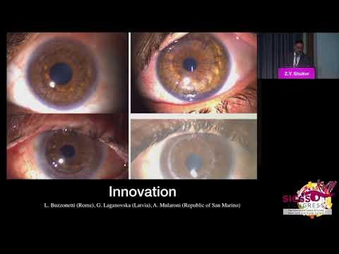 SICSSO 2018 - ITA - Z. Y. Shukur (Iraq) - A step toward long lasting keratoplasty in medically chall