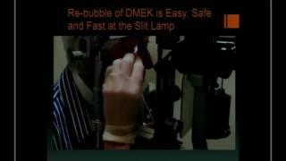 ENG - M. Terry (USA) - The dark side of DMEK: complications and how to avoid them