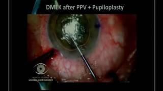 SICSSO 2016 - ENG - R.C. Ghanem (Brazil) - DMEK in challenging cases - after PK, aphakia and AC lens