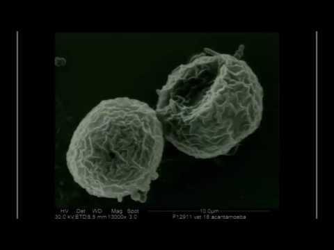 SICSSO 2016 - ITA - A. Del Prete (Napoli) - Raman effect and Achantamoeba infection
