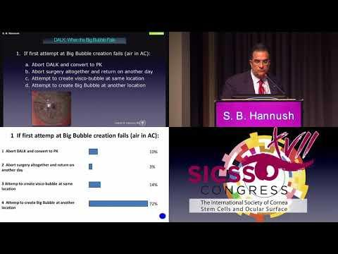SICSSO 2018 - ITA - S. B. Hannush (USA) - Case presentation