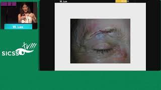 SICSSO 2019 - ENG - W. Lee (USA) - Basic eyelid reconstruction after trauma or cancer removal