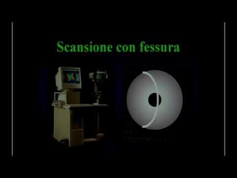 SICSSO 2016 - ITA - N. Rosa (Salerno) - Corneal imaging up to date