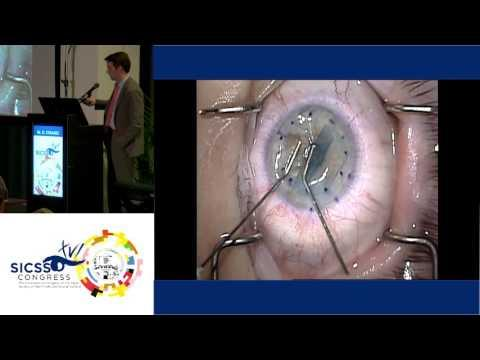 SICSSO 2017 - ENG - M. D. Straiko (USA) - Orientation and graft opening techniques in DMEK