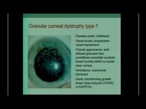 SICSSO 2016 - ENG - F. Simonelli (Napoli) - Clinical implications of corneal genetic diseases